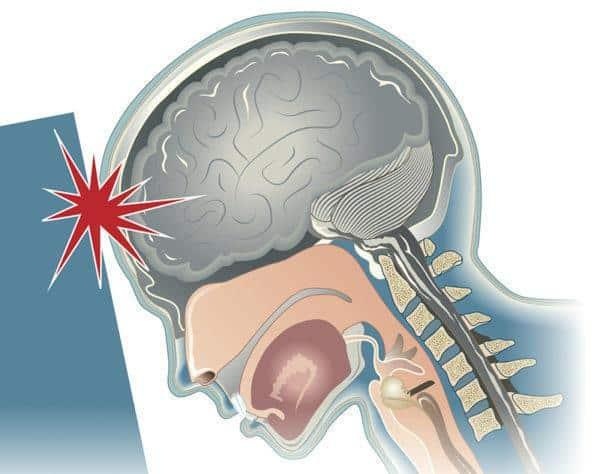 Concussion Mild Traumatic Brain Injury